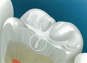Dental Seals